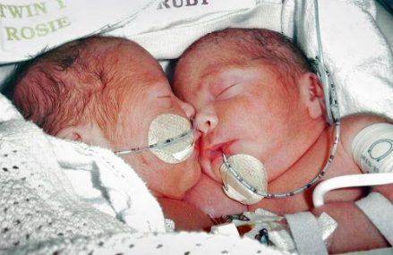 [Song sinh]                                           Cặp song sinh dính liền sau 4 năm phẫu thuật tách rời