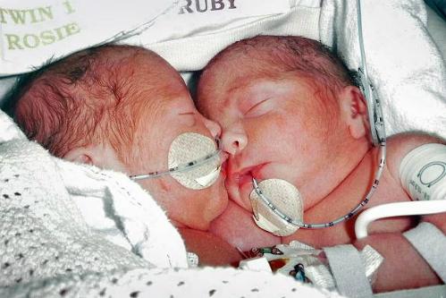 [Song sinh]                                           Cặp song sinh dính liền sau 4 năm phẫu thuật tách rời                                     773